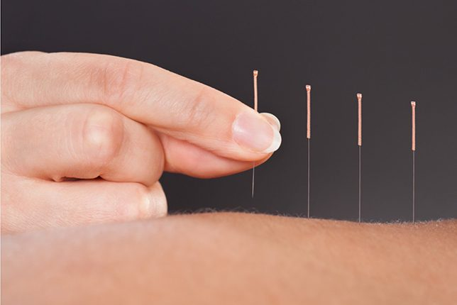 acupuncture​